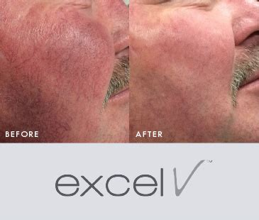 skin wellness excel v laser skin wellness center of alabama
