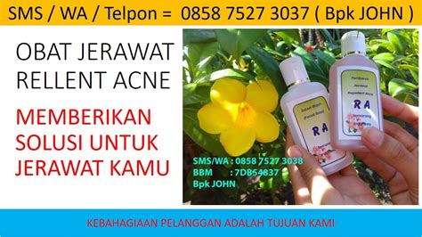 Sk Ii Untuk Jerawat sabun herbal untuk menghilangkan bekas jerawat