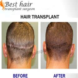 best hair transplant doctors in america best hair transplant surgery in south delhi 13 palam