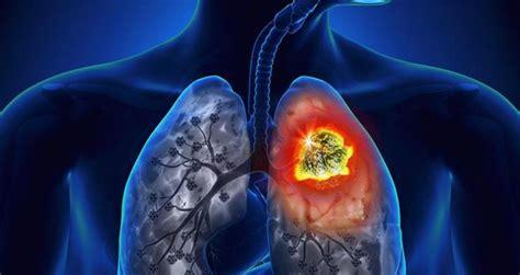 el lado oscuro de cncer ests brbara el c 225 ncer del pulm 243 n se cobra tres vidas por minuto