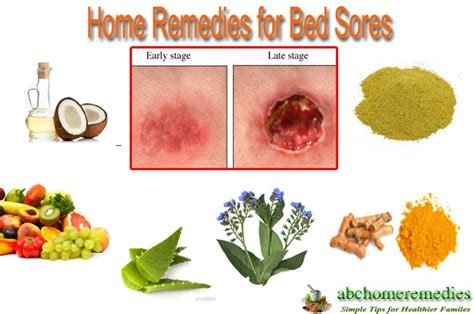 Treatment For Bed Sores Home Remedies by 12 Great Home Remedies For Bed Sores Abchomeremedies
