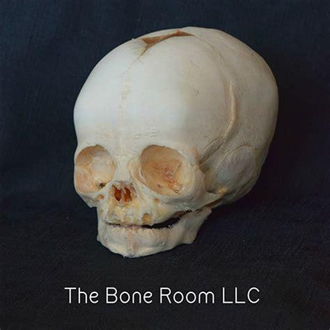 bone room church of part 17