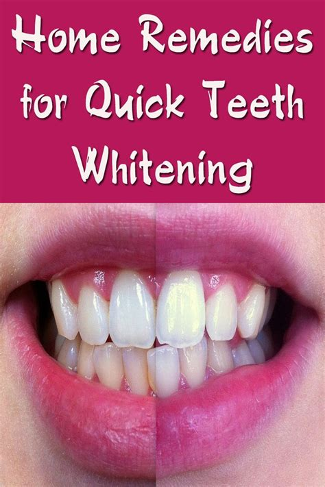 teeth whitening quick images  pinterest