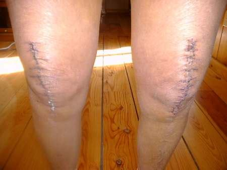 knee surgery knee replacement surgery total knee replacement surgery hairstyles