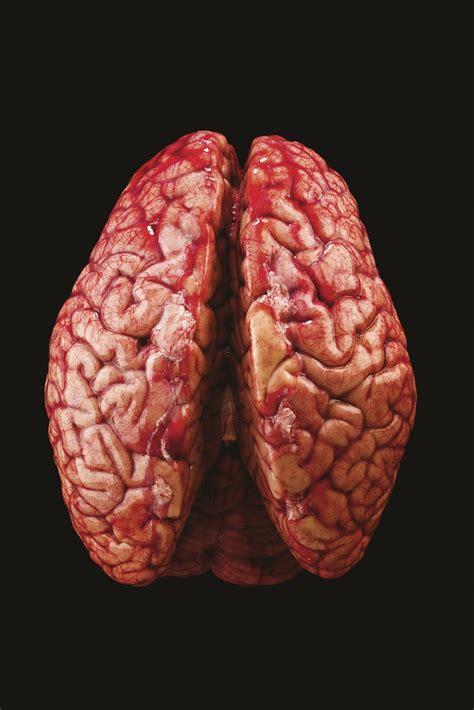 imagenes reales cerebro humano secretos del cerebro taringa