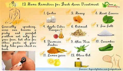 12 home remedies for back acne treatment home remedies