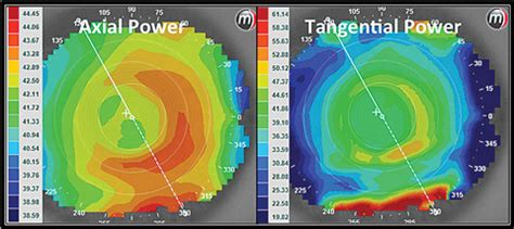 mapping out corneal topography
