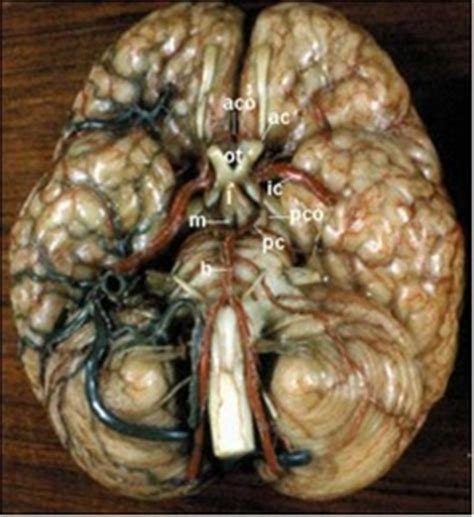 aneurisma carotide interna aneurismi