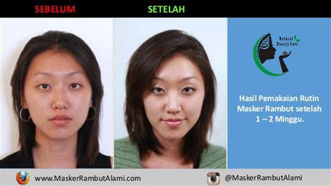 Krim Masker Rambut sms 0856 4369 9889 produk masker rambut rontok