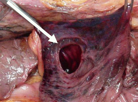 perforated gastric corpus   strangulated paraesophageal hernia  case report