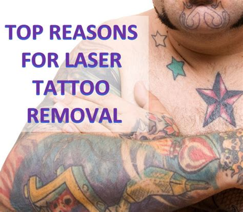 tattoo removal qualifications 100 precision laser removal 45 best