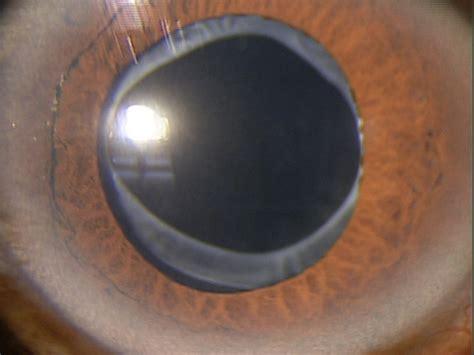 z96 1 presence of intraocular lens decision maker plus