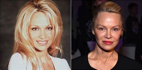 celebrity plastic surgery blog celeb surgery pics 16 worst celeb plastic surgeries photos