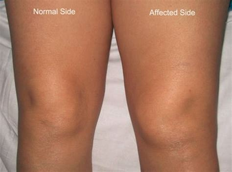 s swollen swollen knee symptoms causes treatment and remedies
