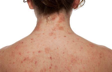 dermatite atopica bambini alimenti da evitare eucerin pelle atopica dermatite atopica sul corpo