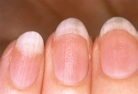 flat nail beds healthy life september 2011