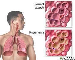 penyakit pneumonia gejala penanganan  pengobatan