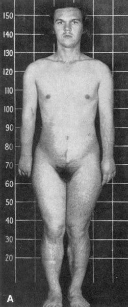 Congenital Adrenal Hyperplasia Diseases Conditions Minuteconsult