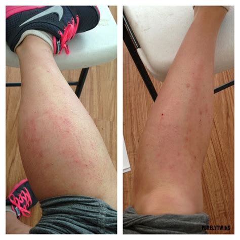 Detox From Itching by My Journey To Healing Eczema And The New Diet That