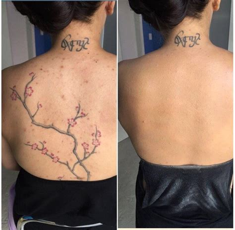 is tattoo removal covered by insurance coverthat revolutionary make up cover