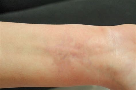 laser tattoo removal after 4 sessions 10 removal after 4 sessions regrets