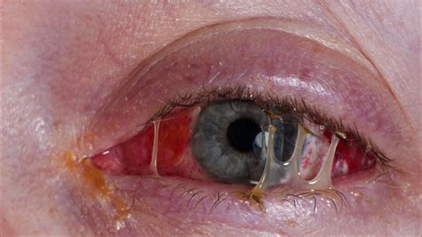 eye crust common causes of irritated