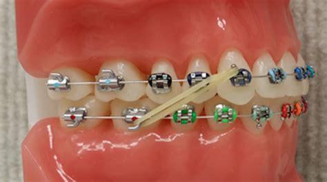 braces rubber bands colors elastics gorton schmohl orthodontics braces colors