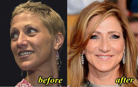 mika brzezinski plastic surgery before and after pictures jamie colby plastic surgery before and after celebrity