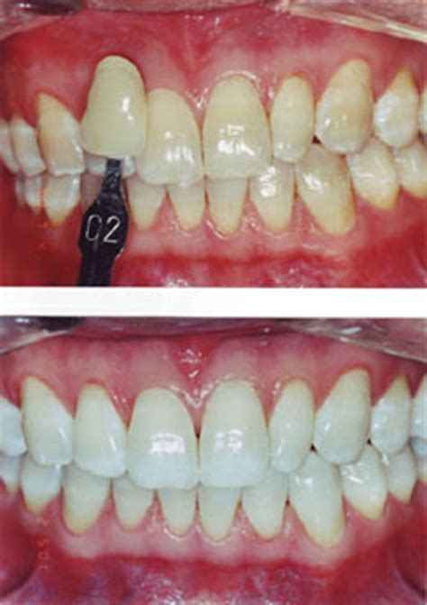 tooth whitening read    bleach robert