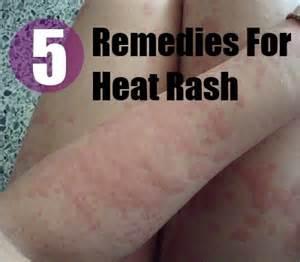 home remedies for heat rash 5 heat rash herbal remedies treatments and cure