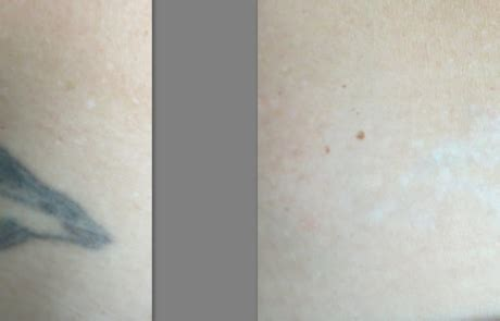 tattoo removal in lexington ky best removal ky laser removal