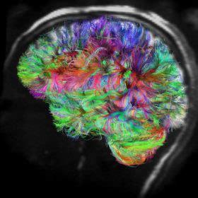 test della ballerina test della ballerina i nostri due cervelli lo scienziato