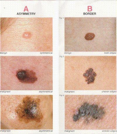melanoma  diagnosis, treatment, prevention, pictures