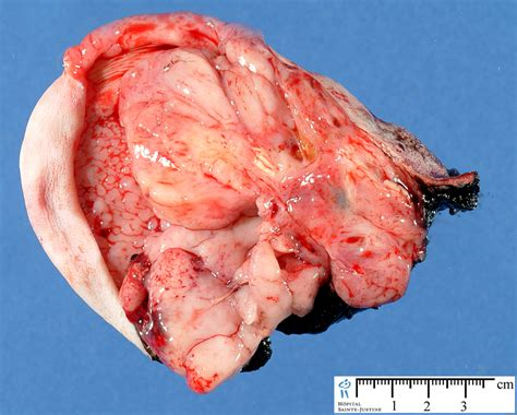 pilonidal cyst teeth sacrococcygeal teratoma humpath com human pathology