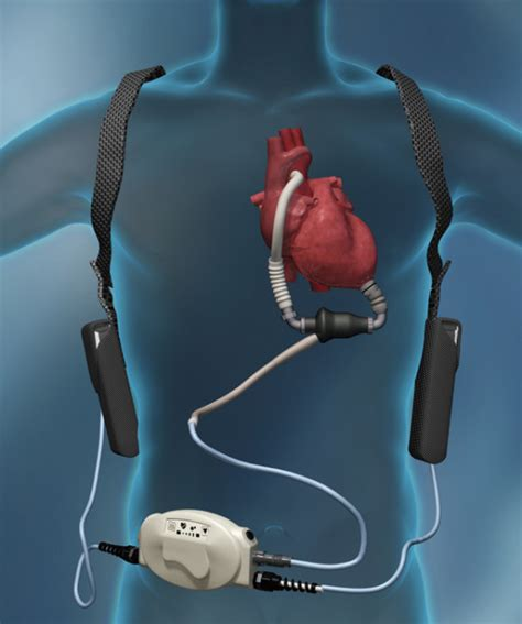 Muscular Dystrophy Patient Makes History with LVAD Implant Lvad Clinic