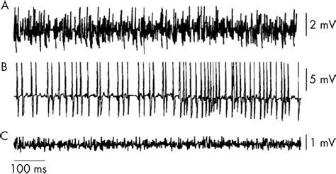 interference pattern analysis emg the basics of electromyography journal of neurology