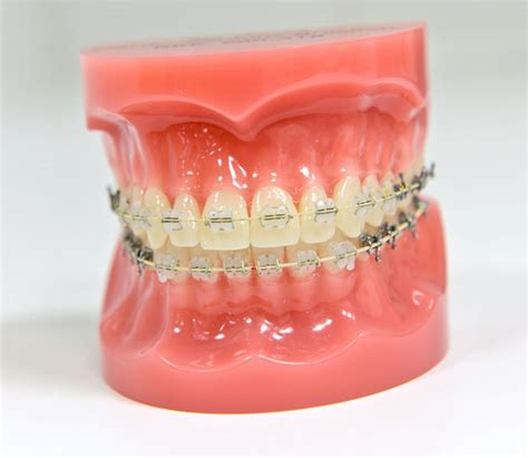 clear braces with color orthodontic braces color and clear braces