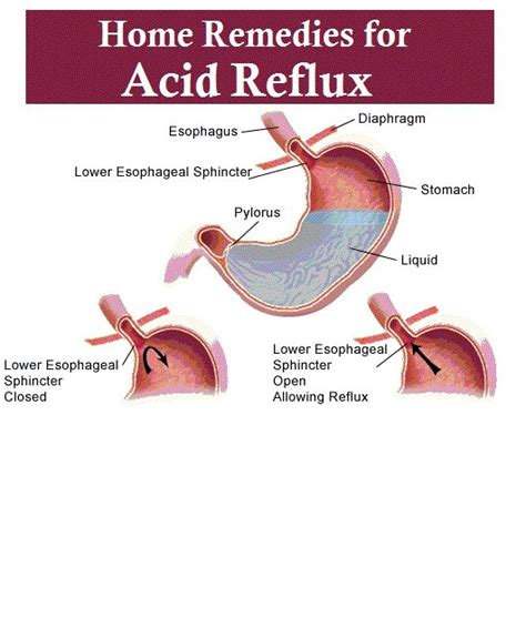 home home remedies and remedy for acid reflux on