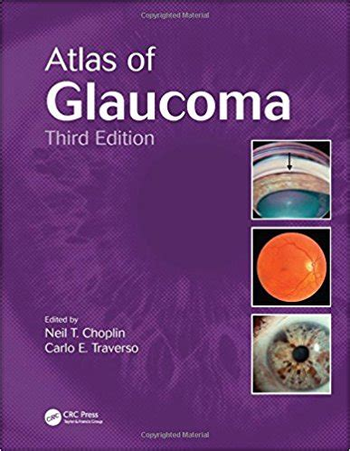 E Marketing Third Edition atlas of glaucoma third edition 3rd edition emedical books