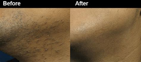 laser hair removal for african american patients