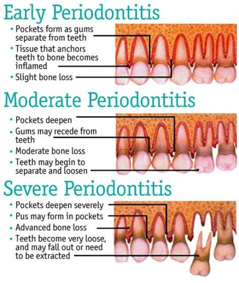 Comfort Dental Avon Co by Periodontics Comfort Dental