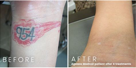 laser tattoo removal fort lauderdale before and afters ageless