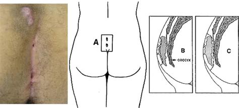 pilonidal cyst diagram pin pilonidal cyst sinus tract
