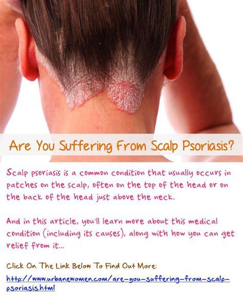 scalp psoriasis the psoriasis and psoriatic arthritis pin by anne jones on health psoriasis pinterest