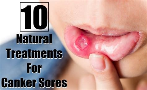 10 amazing treatments for canker sores search