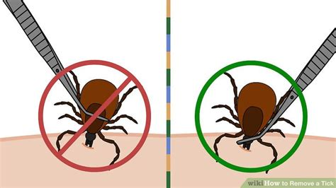 how to remove a tick from a tick removal sinaiem