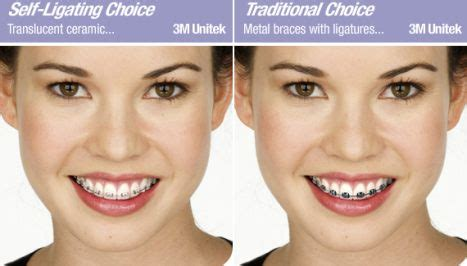 Harga Clear Braces klinik pergigian syarifah type of braces jenis pendakap