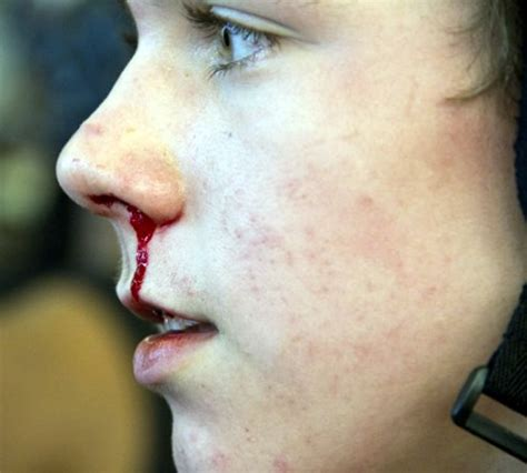 nose bleed bleeding from nose causes and treatment