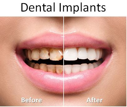 comfort dental implants before and after pictures pensacola fort walton beach fl