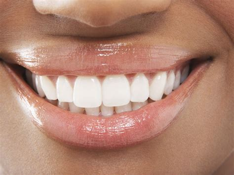 whitening products  sensitive teeth  gums